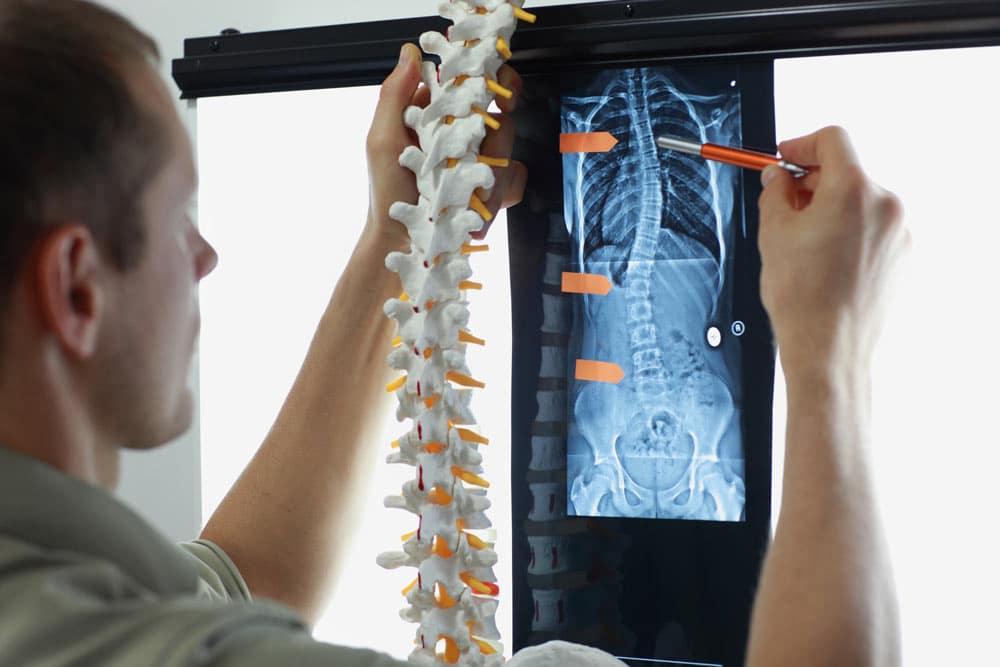 Comment soigner une scoliose idiopathique de l'adolescent avec l'ostéopathie ?